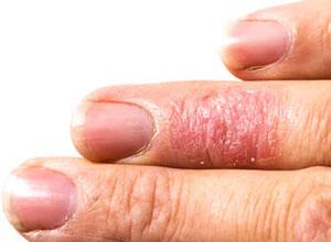 pelle prurito allergia